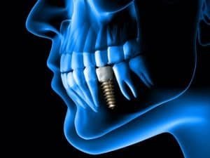 Basic Implants for the GP