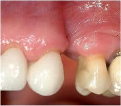 obliteration of the buccal plate